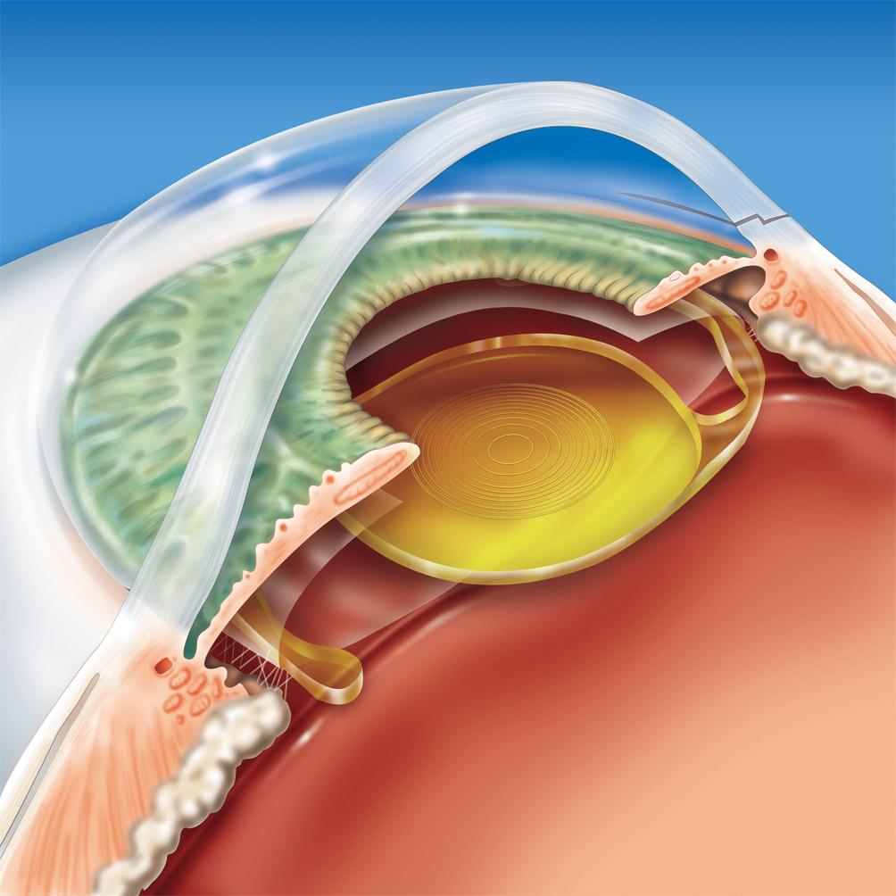 b72cf0d2cb Lente Intraocular – Cirurgia de Catarata | Cirurgia de Catarata ...
