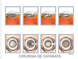 Cirurgia de Catarata passo-a-passo