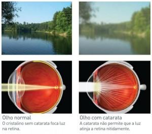 A Visão comprometida pela Catarata fica prejudica e pode levar a cegueira.
