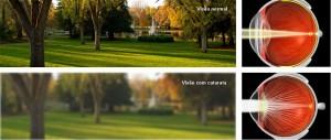 Comparação visão com e sem catarata
