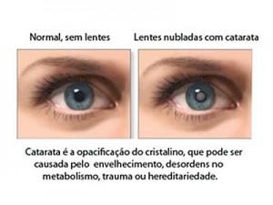 Catarata Ocular