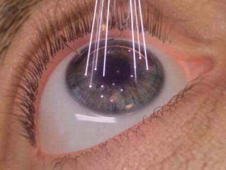 e925bc293 Cirurgia Refrativa a Laser (Miopia, Astigmatismo e Hipermetropia ...