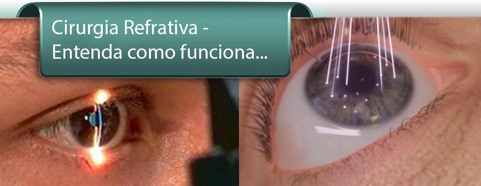 4d648a8bf Notícias   Cirurgia de Catarata - Cirurgia de miopia - Curitiba ...
