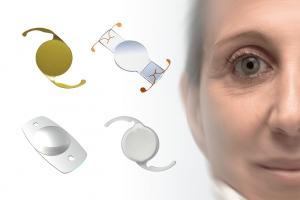 lente intra ocular cirurgia de catarata