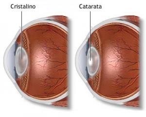 Detalhe de como é a catarata no olho.