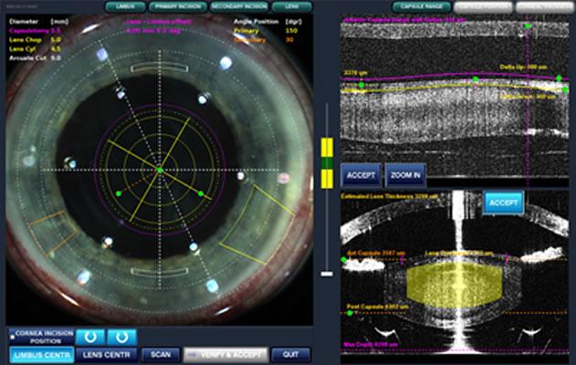 cirurgia de catarata laser