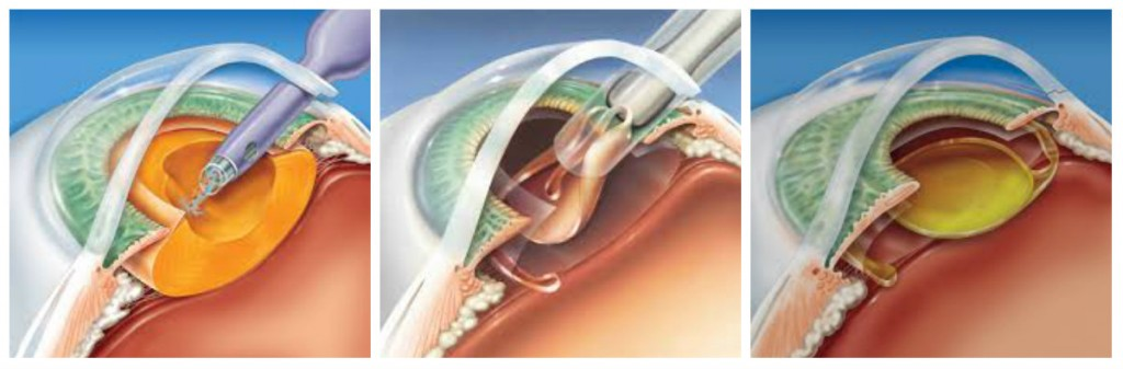 cirurgia catarata curitiba faco