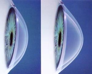 Comparativo do Olho normal com o olho com Ceratocone