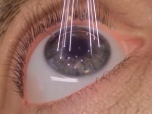 cirurgia a laser miopia curitiba