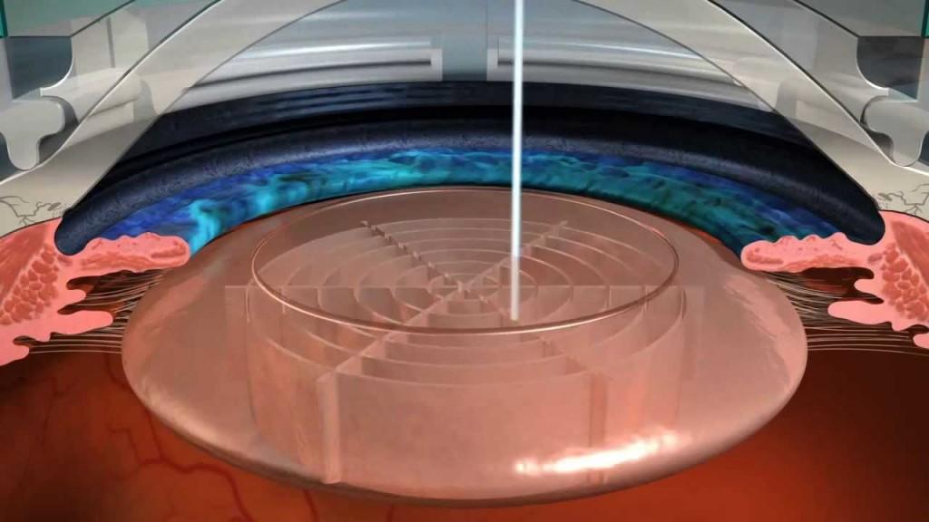 cirurgia refrativa de catarata com laser