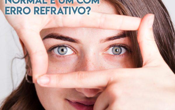 qual a diferenca entre um olho normal e um com erro refrativo